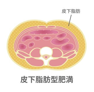 皮下脂肪を落とす方法.jpg